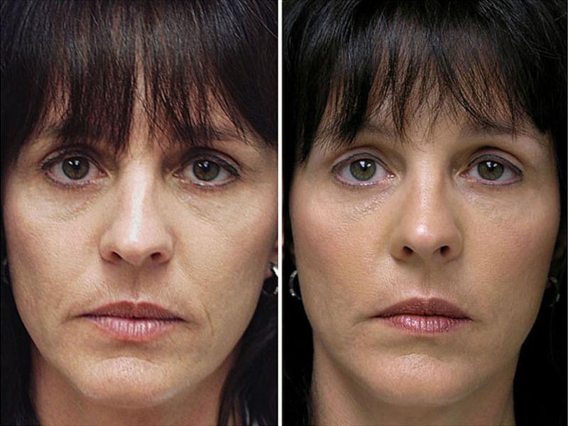 биоармирование лица фото до и после часто после