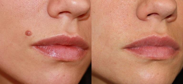 До и после лазерного удаления родинки на лице