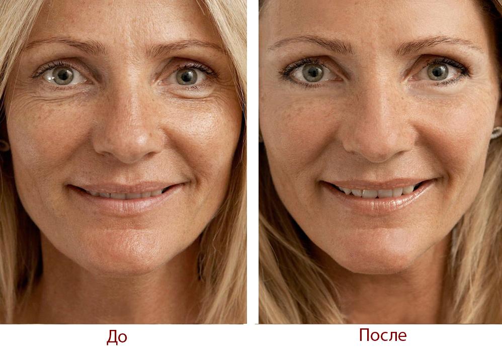 Что делать с сухой кожей лица в домашних условиях