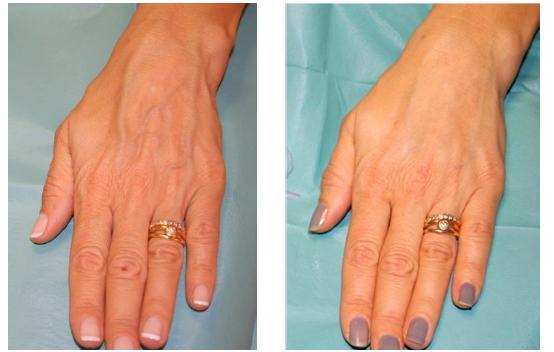 Цена биоревитализации рук